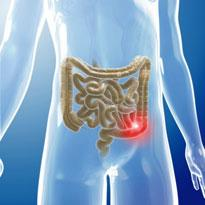 Colorectal cancer (CRC) care products