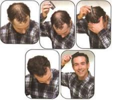 Hair Building Fiber hair grow oil