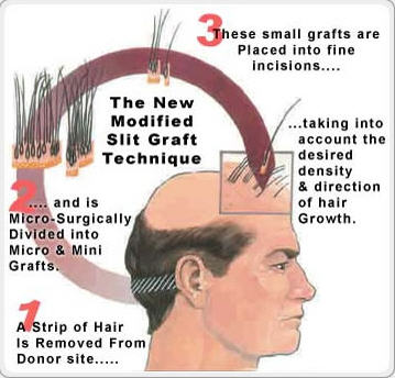 Order Follicular Hair Transplantation
