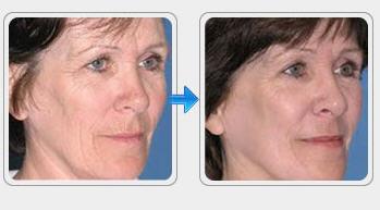 Order Wrinkle Treatment