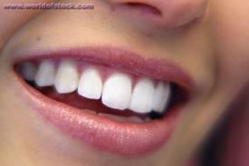 Order Cosmetic dentistry