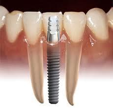 Order Dental implants