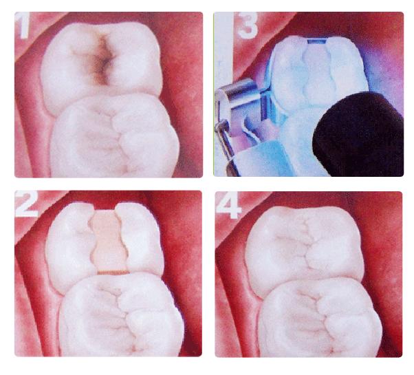 Order Dental fillings