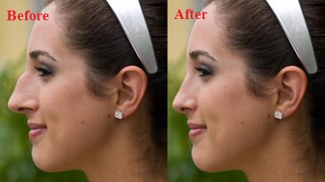 Order COSMETIC SURGERY SERVICES