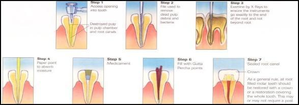 Root canal treatment order in Gujrat