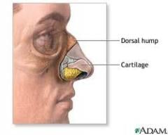 Plastic surgery of the nose