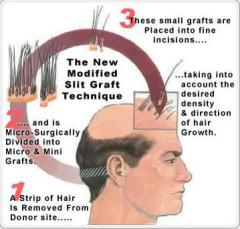 Follicular Hair Transplantation