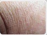 The Harmony module for fractional ablative skin resurfacing